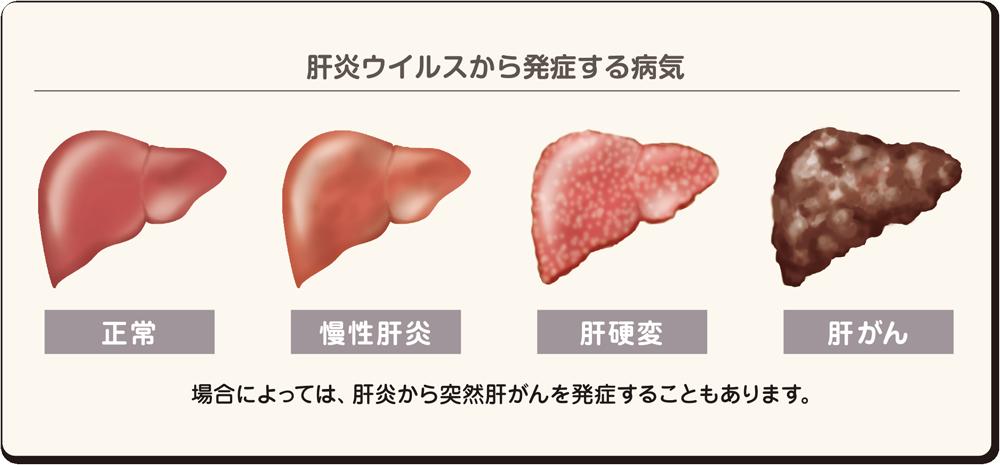 病気 肝臓